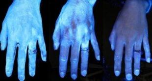 Ultraviyole ışığı ile el dezenfekte etmek